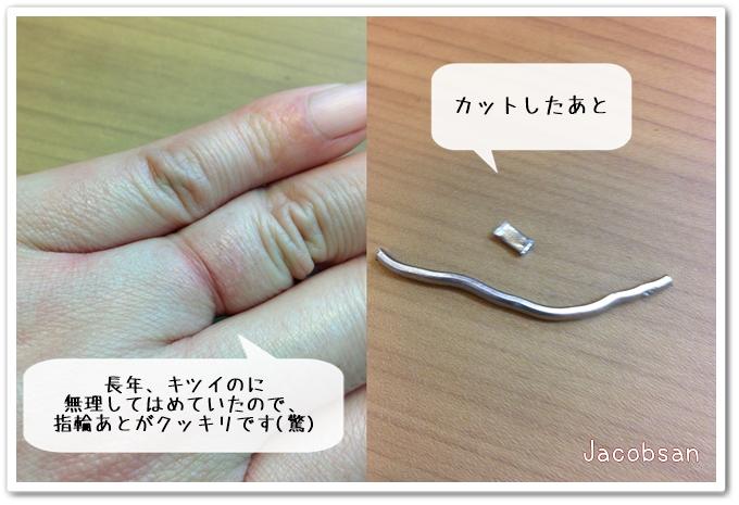 カットした指輪とくいこんだ指